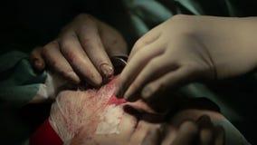 Cirurgia oral e Maxillofacial O cirurgião faz o contorno facial video estoque