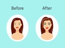 Cirurgia plástica antes e depois da ilustração Retrato da menina bonita no estilo dos desenhos animados Imagens de Stock