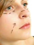 Cirurgia plástica facial Imagens de Stock
