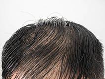 Clôturez vers le haut de quelques coiffures des beaucoup le problème sérieux de perte des cheveux d'homme pour le produit de sham image libre de droits