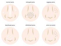 Clases de poros de la piel Imagenes de archivo
