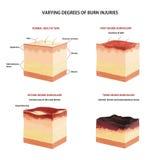 Clasificación de la quemadura de la piel Foto de archivo libre de regalías
