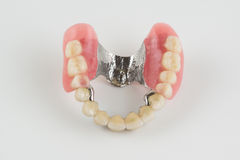 Clasp prosthesis with and latch ceramic crowns Royalty Free Stock Image