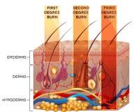 Classificação da queimadura da pele ilustração do vetor