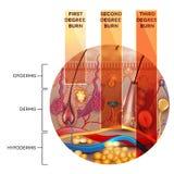 Classificazione dell'ustione della pelle nella forma rotonda illustrazione vettoriale