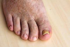 Clave el hongo en las uñas del pie y los puntos de la piel foto de archivo