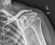 Clavicle bone, Shoulder Medical Xray. Patient treatment Royalty Free Stock Images