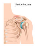 Clavicle fracture Royalty Free Stock Image