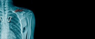Clavicle fracture x-ray image. Shoulder pain on black background stock photography