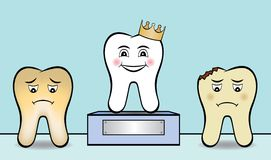 Clean White Tooth Wins Award. A clean white tooth wins award. It has a crown and stands on a podium with a blank plaque you can write a message on. There is also Stock Photography