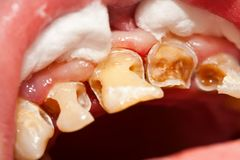 Cleaned cavities Stock Image
