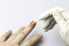 Cleaning section of finger injury. Doctor cleaning a wound from a cut Royalty Free Stock Photos