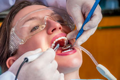 Cleaning the teeth Stock Photography