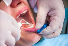 Cleaning the teeth Royalty Free Stock Photo