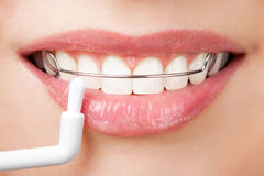 Cleaning teeth with retainer. Cleaning white teeth with retainer Stock Image