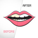 Cleaning Teeth, Before and After Royalty Free Stock Photos