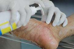 Cleaning wound. Royalty Free Stock Images
