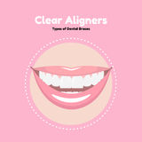 Clear Dental Alighers. Types of Dental Braces. Vector flat illustration of smile with alighers on the teeth Stock Image