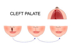Cleft palate in a child. plastic surgery. reconstruction of the Stock Photos