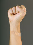 Clenched fist with plaster Royalty Free Stock Images