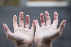 Climber& x27; s手指 库存图片