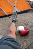 Climbing Injury Stock Photo