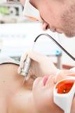 Clinician som gör resurfacing för ablativeCO2hud Arkivfoton