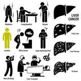 Clipart del cancro del fegato Fotografia Stock