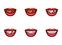 Clipart of female mouths with dental problems. Clipart of vector female mouths with dental problems. Spoiled, darkened, nasty, crooked teeth, tooth loss, gums Royalty Free Stock Photography