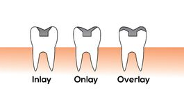 Clipart tooth Stock Photography