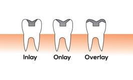 Clipart ząb ilustracji