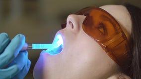 Clode herauf weibliche geduldige erhaltene Behandlung mit zahnmedizinischer UV-Licht-Ausrüstung Zahnmedizinisches Büro stock footage