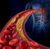 Clogged Artery. And atherosclerosis disease medical concept with a three dimensional human artery with blood cells that is blocked by plaque buildup of Royalty Free Stock Image