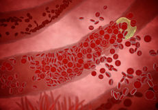 Clogged Artery with platelets and cholesterol plaque, concept for health risk for obesity or dieting and nutrition problems.  Stock Photos