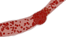 Clogged Artery with platelets and cholesterol plaque, concept for health risk for obesity. Or dieting and nutrition problems Stock Images