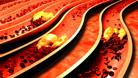 Clogged Artery with platelets and cholesterol plaque,. Concept for health risk for obesity or dieting and nutrition problems Stock Photo