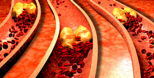 Clogged Artery with platelets and cholesterol plaque, Stock Photography