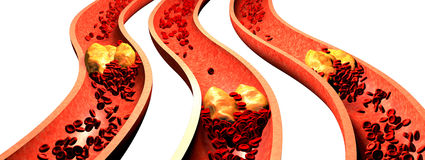 Clogged Artery with platelets and cholesterol plaque, Royalty Free Stock Images