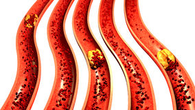 Clogged Artery with platelets and cholesterol plaque, Stock Photos