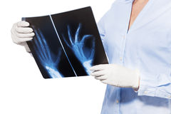 Close shoot hand and fingers xray in doctor hands. Close shoot of doctor holding xray of patient hand and fingers stock photo