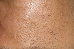 Close up Acne , Acne holes welded on face Royalty Free Stock Image
