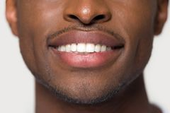Close up african male having ultra white toothy smile stock photos