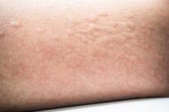 Rash skin royalty free stock image