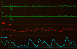 Close Up of Atrial Flutter on Monitor with Black Screen Royalty Free Stock Photos