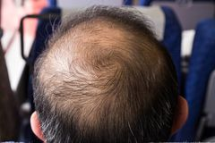 Close-up of balding and thinning hair of man revealing scalp. Close-up of balding and thinning hair of man at crown area revealing scalp stock image