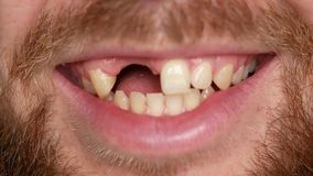 Close-up of a bearded man. He turns his head into a frame and smiles. The guy`s teeth are broken.  stock footage