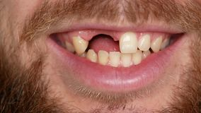 Close-up of a bearded man. He turns his head into a frame and smiles. The guy`s teeth are broken.  stock video footage