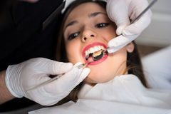Close up of beautiful girl having dental check up in dental clinic. Dentist examining a patient`s teeth with dental tools - mirror and probe. Dentistry Royalty Free Stock Photo