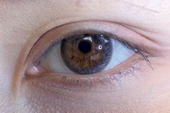 Close up of beautiful woman eye contact lens. Close up of beautiful woman eye and contact lens stock images