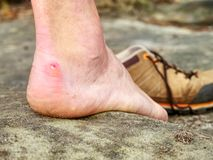 Close up on Blister on foot of a male. Hurt hikers legs without shoes. Misty morning fall nature. Outdoor activities stock photos